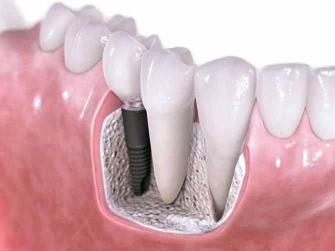 Ref: TRRO20160728001 Desarrollo de nuevos biomateriales metálicos para aplicaciones dentales